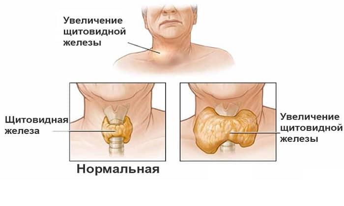 Узловые образования правой доли щитовидной железы представляют собой округлые участки разросшейся железистой ткани