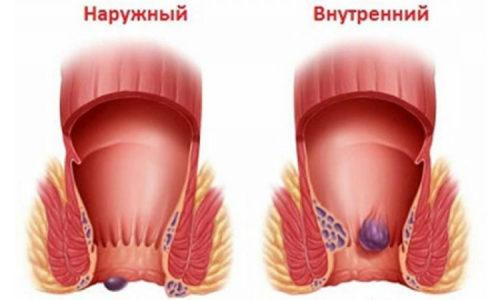 Геморрой – это хроническое заболевание аноректальной зоны, в основе которого лежит варикозное изменение вен прямой кишки или подкожных вен заднего прохода