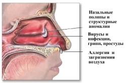 Симптомы острого гайморита