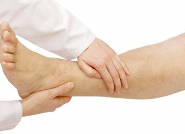 Симптомы и лечение тромбофлебита нижних конечностей народными средствами
