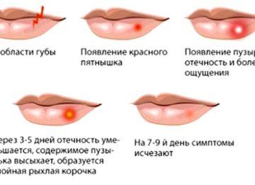 Симптомы герпеса у женщин