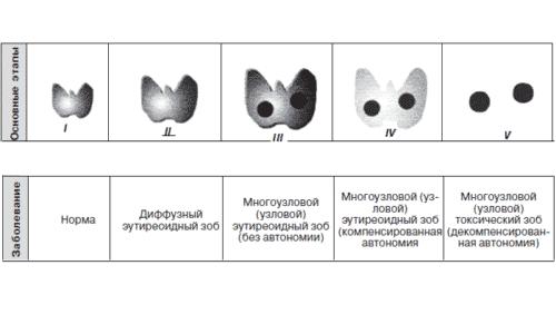 По размеру узлы щитовидки классифицируют по принятой ВОЗ шкале от 0 до 5: нулевое значение означает, что щитовидка не пальпируется (норма), а 5 - железа увеличена настолько, что сдавливает соседние органы