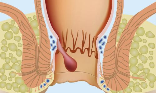 Действие венотиков направлено на устранение причины развития варикозного расширения вен прямой кишки