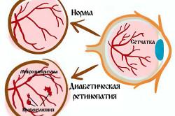 Схема ретинопатии при диабете