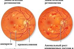 Непролиферативная и пролиферативная стадии диабетической ретинопатии