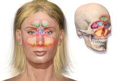 Гайморит - причина односторонней заложенности носа