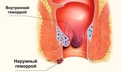 Использование гирудотерапии помогает полностью устранить геморроидальные узлы