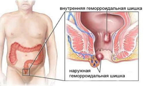 Геморроидальные вены расширяются, а в их стенках появляются дистрофические изменения с формированием венозных карманов, заполненных кровью, такие образования принято называть геморроидальными шишками или узлами