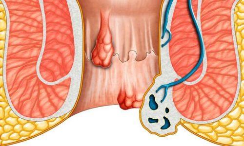 Гель Венорутон при геморрое воздействует на причину заболевания, устраняя ломкость капилляров и повышая упругость сосудов на фоне нормализации кровообращения в проблемной зоне