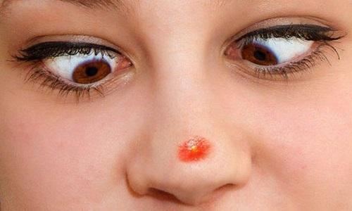 Герпес на носу требует незамедлительного системного лечения, чтобы избежать осложнений