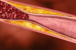 Снижение холестерина с помощью листьев смородины
