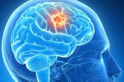 Опасность возникновения инсульта при курении
