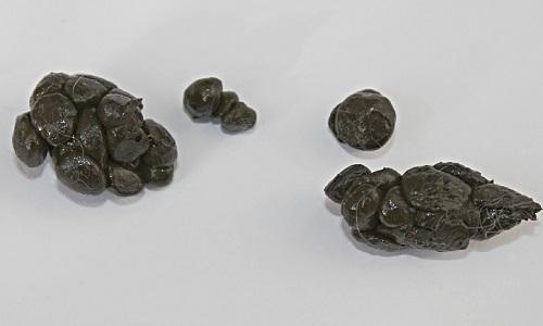 Кал может быть орехопообным, когда каловые массы состоят из отдельных твердых частичек