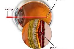 Лазерное прижигание патологических капилляров сетчатки