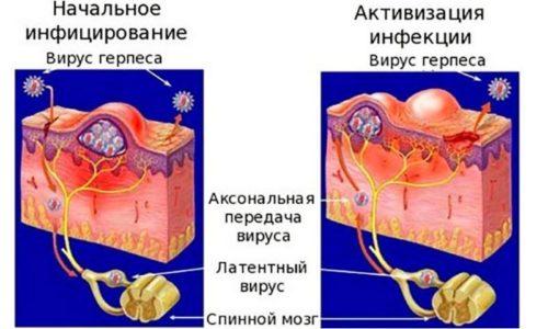 Схема развития герпеса в организме человека