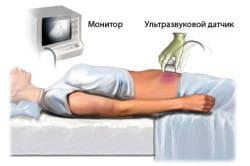 Необходимость УЗИ для определения заболевания