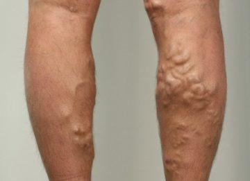 Варикозное расширение вен на ногах: как избежать неприятностей