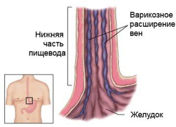 Как проявляется варикозное расширение пищеводных вен и как его лечить